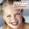 Выравнивание зубов и исправление прикуса в любом возрасте